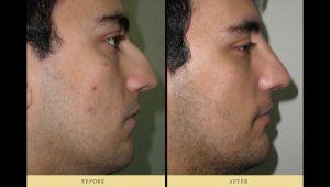 nosejob: photo of a man after nose surgery