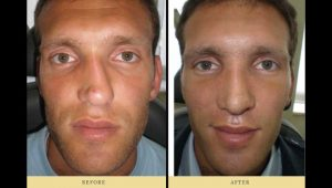 rhinoplasty : man after nose surgery