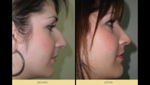 rhinoplasty : woman profile after nose surgery
