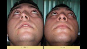 rhinoplasty : Deviated nasal septum and nose job 1