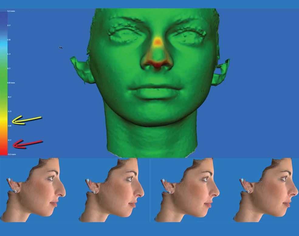 Images from Vectra 3D Simulation System