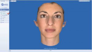 rhinoplasty 3d simulation plastic nose 1