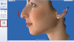 rhinoplasty 3d simulation plastic nose 10