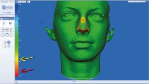 rhinoplasty 3d simulation plastic nose 12