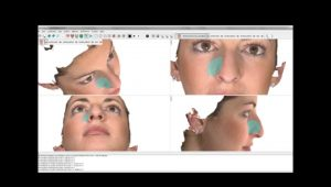 rhinoplasty 3d simulation plastic nose 15