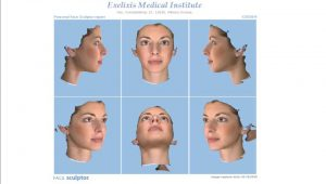 rhinoplasty 3d simulation plastic nose 16