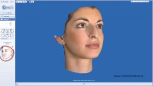 rhinoplasty 3d simulation plastic nose 2