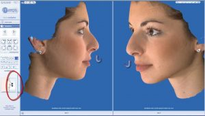 rhinoplasty 3d simulation plastic nose 3