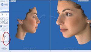 rhinoplasty 3d simulation plastic nose 4