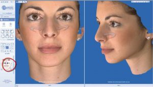 rhinoplasty 3d simulation plastic nose 5