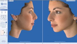 rhinoplasty 3d simulation plastic nose 6