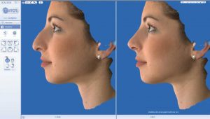 rhinoplasty 3d simulation plastic nose 7