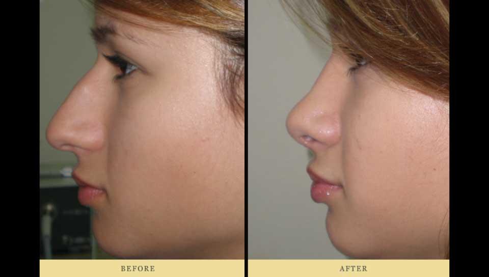 ρινοπλαστική Πριν και μετά: δεξιά όψη