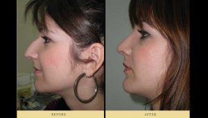 How much does a nose job cost? The price of a rhinoplasty