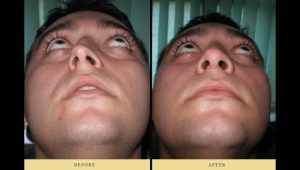 rhinoplasty : Deviated nasal septum and nose job 1