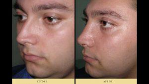 Deviated nasal septum & rhinoplasty - nose job