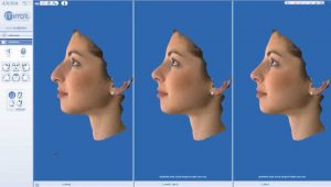 rhinoplasty result before after simulation